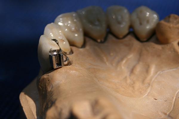 Oberkiefer erfahrungen klammerprothese Patientenfrage: Klammerprothese
